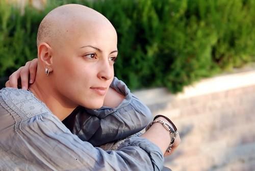 Hóa trị có thể khiến bệnh nhân bị rụng tóc tạm thời