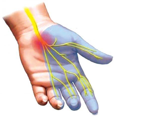 Khi dây thần kinh giữa chạy trong ống cổ tay bị chèn ép sẽ dẫn đến các triệu chứng : Đau, tê bàn tay làm ảnh hưởng ngón cái, trỏ, giữa và nửa ngón đeo nhẫ
