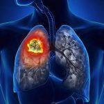 K phổi là gì?