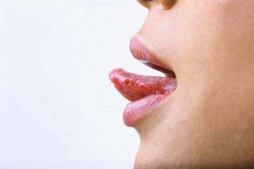 Khám ung thư lưỡi ở đâu