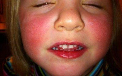 Lupus ban đỏ có lây không?