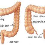 Nguyên nhân giãn đại tràng ở thai nhi