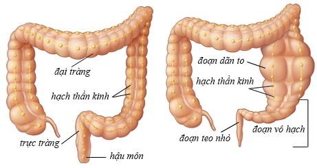 Giãn đại tràng là một dị tật làm yếu ruột già, có thể khiến người bệnh không có khả năng bài tiết phân hợp lí, gây ra tắc nghẽn.