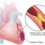 Những điều cần biết về bệnh co thắt động mạch vành