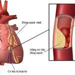 Những điều cần biết về bệnh hẹp mạch vành tim