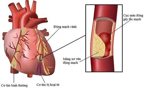 bệnh hẹp mạch vành tim