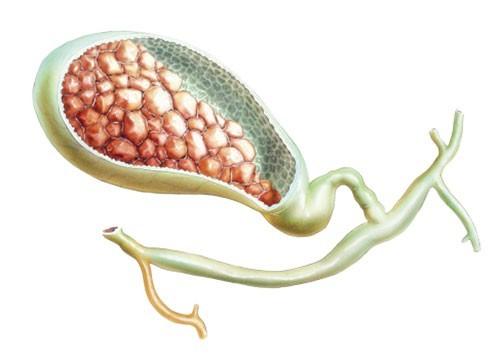 Sỏi mật được hình thành chủ yếu từ sự kết tụ của cholesterol, do mất cân bằng của các thành phần có trong dịch mật như cholesterol, billirubin, muối canxi...