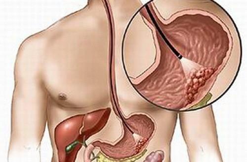 Nội soi đạ dày chẩn đoán chính xác các bệnh lý dạ dày thực quản, tá tràng