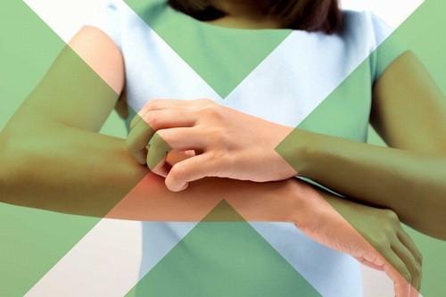Người bị ngứa phát trên da không được gãi để ngừa tổn thương da