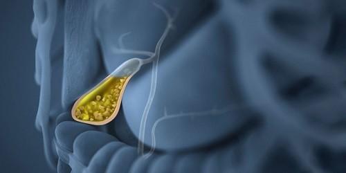Điều trị sỏi túi mật chủ yếu là nội khoa (dùng thuốc) và phẫu thuật cắt túi mật.