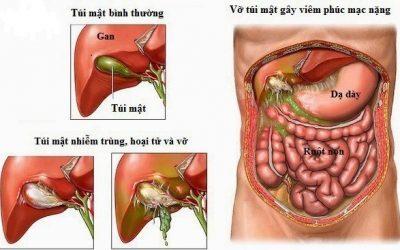 Phẫu thuật viêm phúc mạc nhanh – hiệu quả tại Bệnh viện Thu Cúc