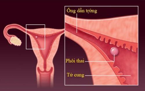 Quá trình thụ thai tính từ khi trứng thụ tinh đến khi mà phôi thai đã được làm tổ được tử cung