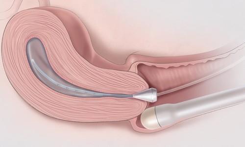 Siêu âm đầu dò âm đạo cách thực hiện thế nào, có tác dụng gì, siêu âm đầu dò có ảnh hưởng thai nhi không?