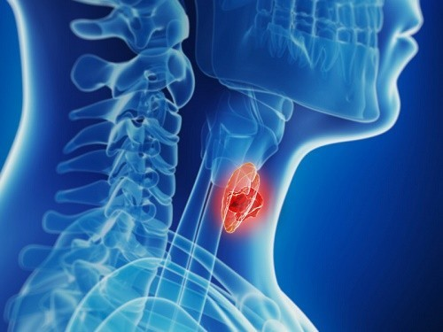 Điều trị ung thư tuyến giáp thể nhú