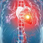 Tổng quan về hội chứng mạch vành cấp