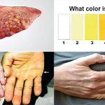 Triệu chứng ung thư gan giai đoạn cuối