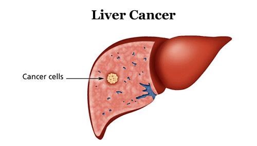 Tiên lượng sống cho bệnh nhân ung thư gan giai đoạn cuối thường rất thấp