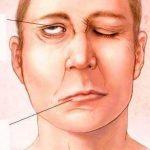 8 triệu chứng xuất huyết não cực kì nguy hiểm