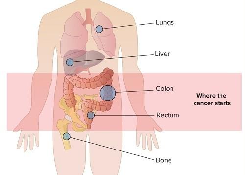 Ung thư tuyến giáp di căn sống được bao lâu?