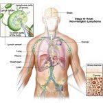 Ung thư hạch có chữa khỏi được không?