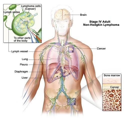 Ung thư hạch có chữa khỏi được không