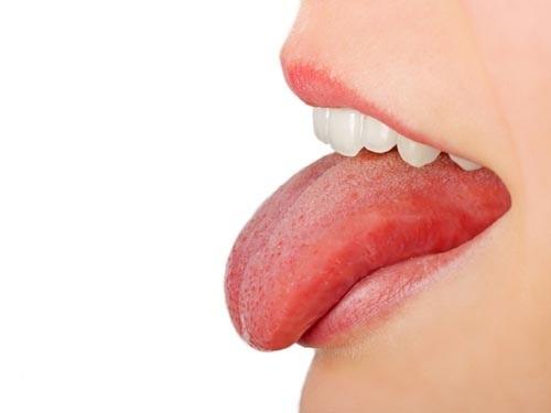 Ung thư lưỡi có chữa khỏi được không?