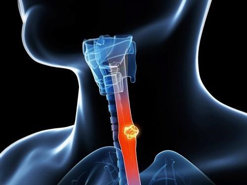 Ung thư thực quản giai đoạn đầu dấu hiệu thế nào?