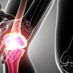 Ung thư xương có di truyền không?