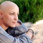 Vì sao hóa trị ung thư lại rụng tóc?