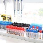 Xét nghiệm máu có phát hiện ung thư không?