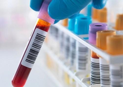 Xét nghiệm chức năng gan cần được thực hiện định kỳ thường xuyên