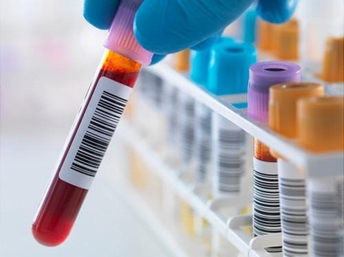 Xét nghiệm máu chẩn đoán viêm gan A