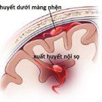 Xuất huyết não có nguy hiểm không?