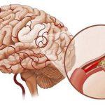 Phương pháp phòng tránh xuất huyết não ở trẻ sơ sinh
