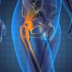 Bệnh lý khiến khớp háng bị đau