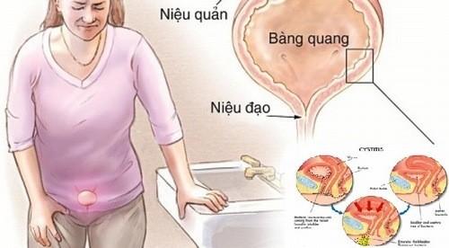 Nhiễm trùng đường tiểu có thể dẫn đến nhiễm trùng các bộ phận khác trong hệ tiết niệu