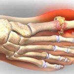 Cách điều trị bệnh Gout như thế nào?