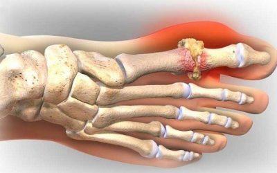 Cách điều trị bệnh Gout Hiệu Quả Triệt để nhất
