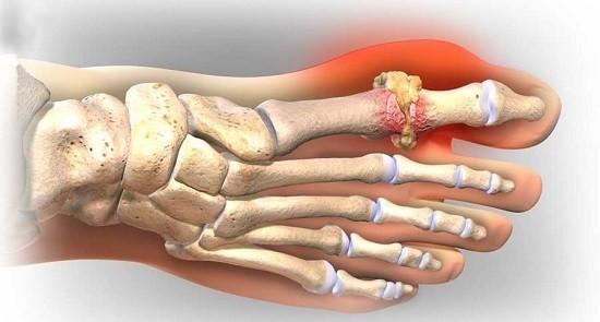 Bệnh Gout (bệnh gút) là một trong những dạng viêm khớp gây đau đớn nhất.