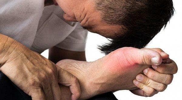 Những cơn đau do gout có thể từ nhẹ đến nặng, từ thưa đến mau,...