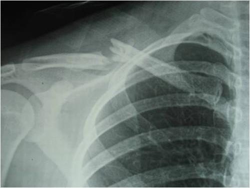 Gãy xương đòn cần được phát hiện sớm và điều trị kịp thời hiệu quả