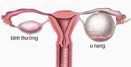 U nang buồng trứng là tình trạng thường gặp ở các chị em.
