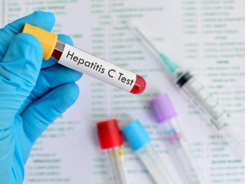Xét nghiệm để chẩn đoán chính xác tình trạng tiến triển của viêm gan C