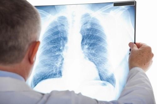 Chụp X quang là kĩ thuật chẩn đoán bệnh lý chính xác