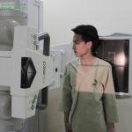 Chụp X quang phổi có phải cởi áo không?