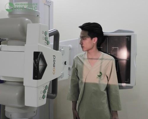 Trước khi chụp X quang khách hàng được chỉ định thay áo để dễ dàng chẩn đoán