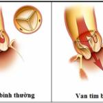 Hở van tim 2 lá khi nào cần phẫu thuật?