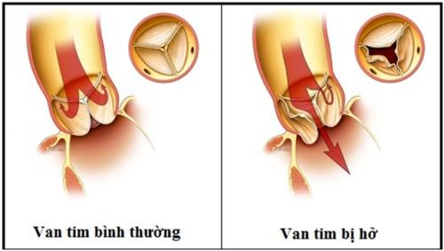 Hở van tim 2 lá là bệnh nguy hiểm cần được phát hiện sớm và điều trị hiệu quả