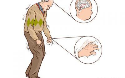 Hội chứng Parkinson có dấu hiệu gì?