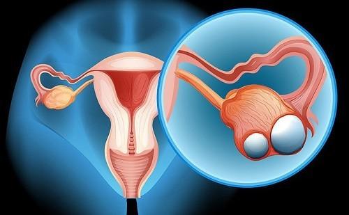 Khám ung thư buồng trứng như thế nào?